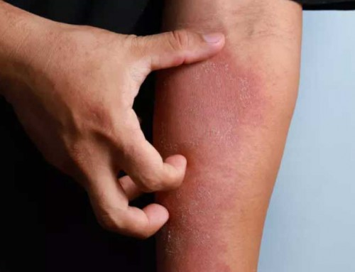 וואלה: הכל על מחלת העור של קים קרדשיאן